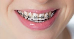 traditional/metal braces