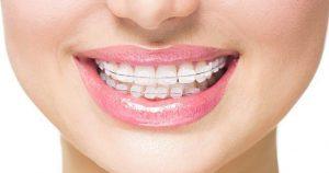clear or ceramic braces